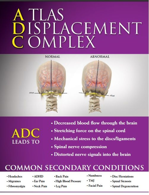 ADC Upper Cervical Chiropractic Vermont