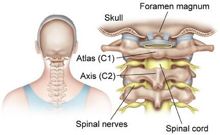 c1-c2-c3-nerves Chiropractic Vermont Upper Cervical Structural Correction.jpg